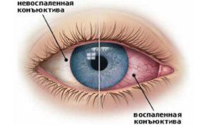 Особенности аллергического поражения глаз
